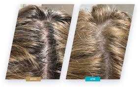 Hairstim - na wypadnie włosów  – czy warto – działanie – allegro
