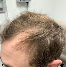 Hairstim – sklep – producent – forum